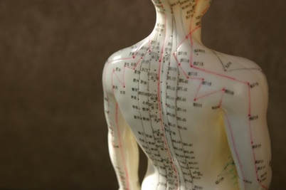 acupuncture, chinese medicine